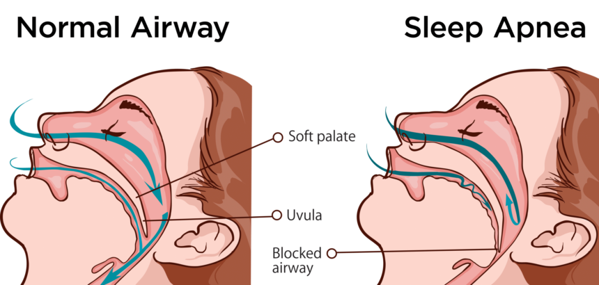 Why Do I Drool When I Sleep? What's the Cause and What to Do?