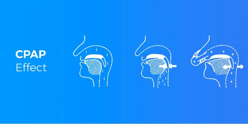 CPAP vs. BiPAP: Which One Do You Need?