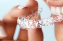 6 Best Mouth Guards for Teeth Grinding to Help Treat Sleep Bruxism
